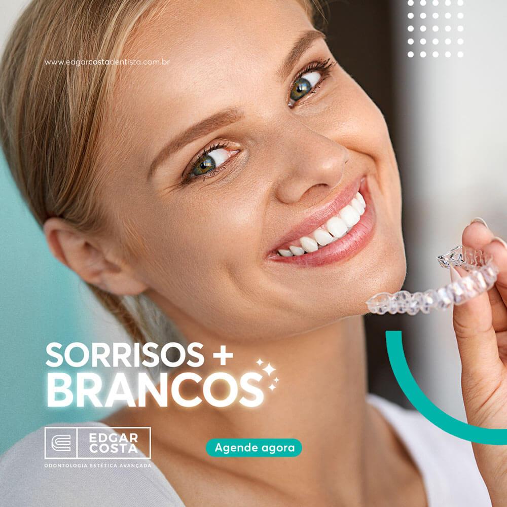 Clareamento Dental Tudo O Que Vc Precisa Saber Edgar Costa Dentista