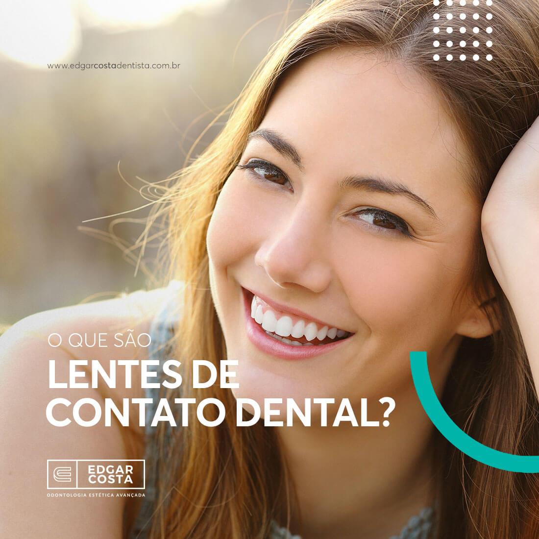 Lentes de contato dental  o que é e como funciona • Edgar Costa ... 1e0fa171fe